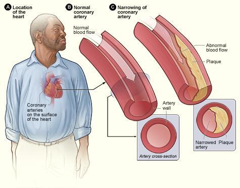 Heart Disease Visual